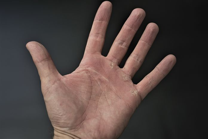 image of hand after deadlifting showing the impressions left over from the mountainous knurl